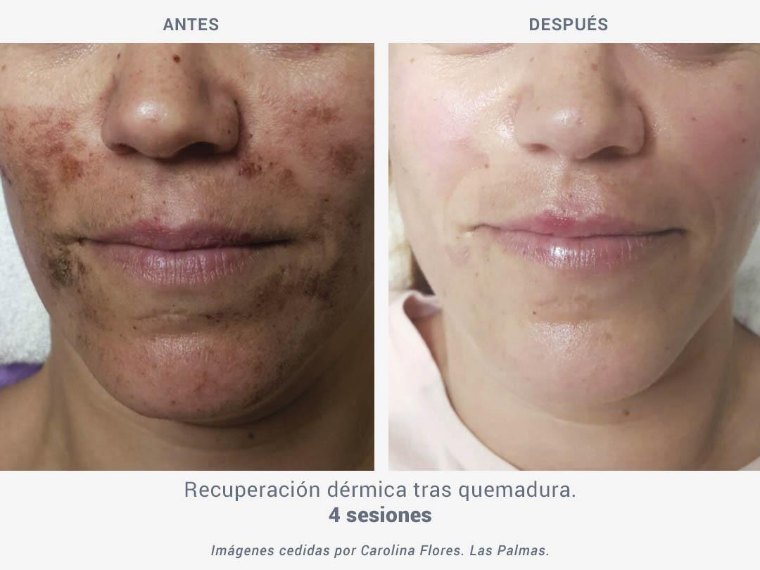 Imágenes del antes y después de recuperación dérmica tras quemadura después de 4 sesiones de tratamiento con Binary de ROSS