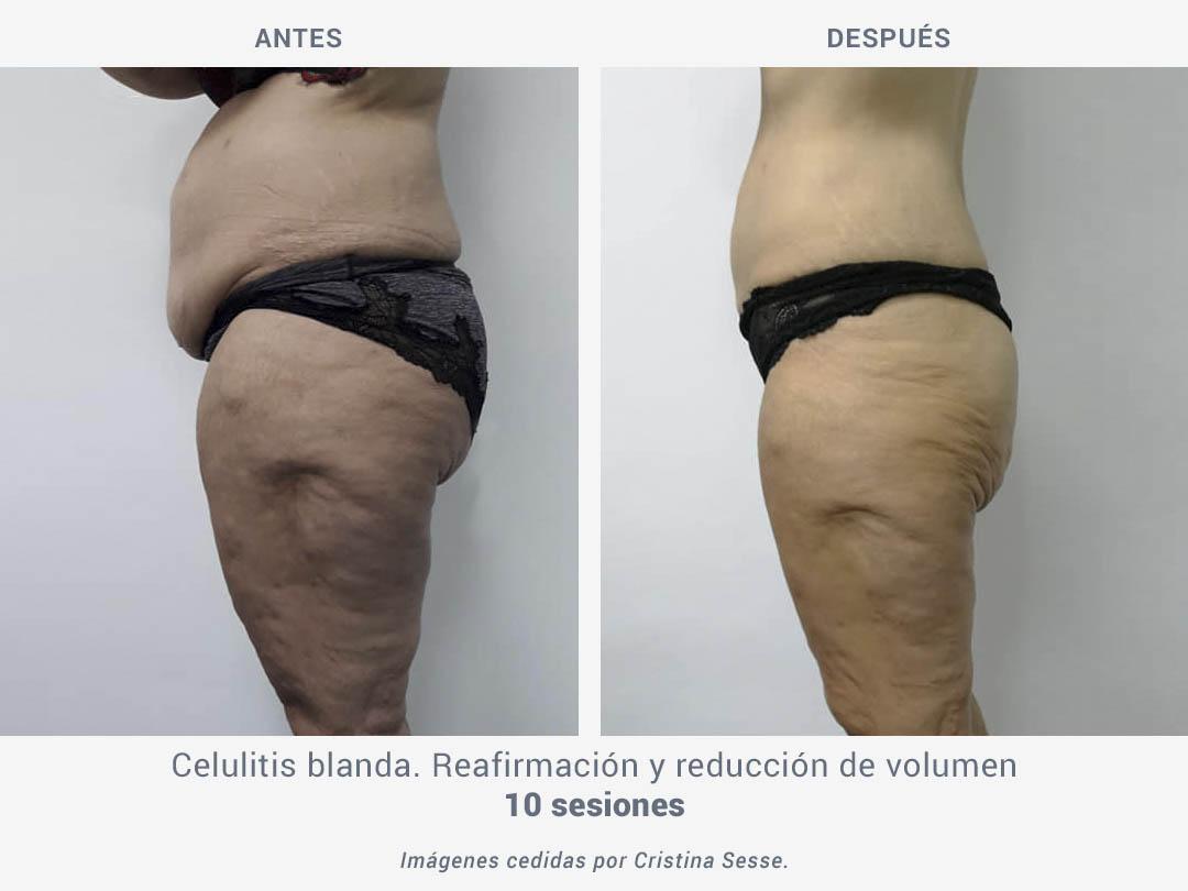 Imágenes del antes y después de celulitis blanda tras 10 sesiones de tratamiento de reafirmación y reducción de volumen con Binary de ROSS