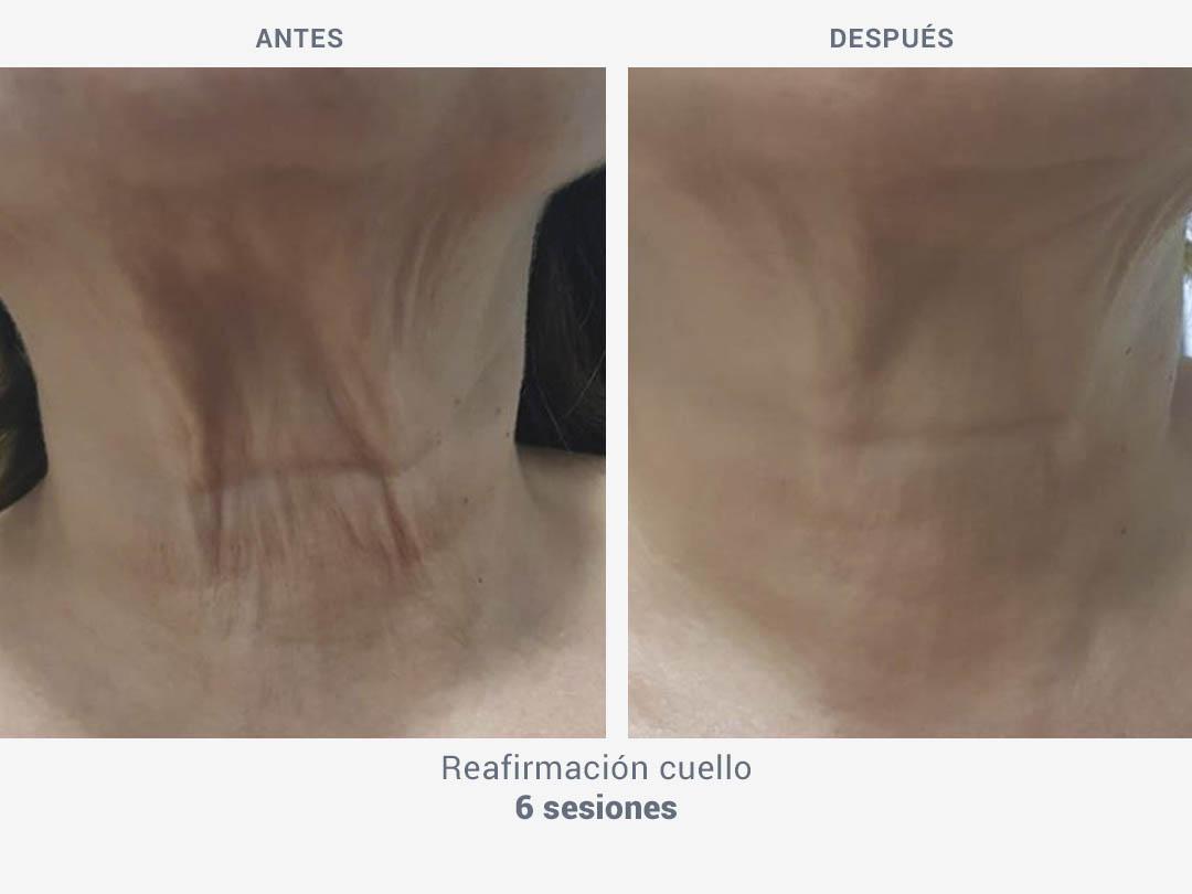 Imágenes del antes y después tras 6 sesiones de tratamiento de reafirmación cuello con Mesobiolift de ROSS