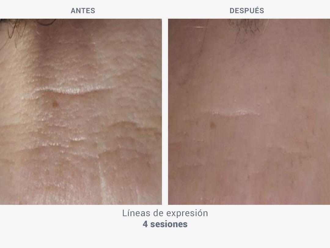 Imágenes del antes y después tras 4 sesiones de tratamiento de líneas de expresión con Mesobiolift de ROSS