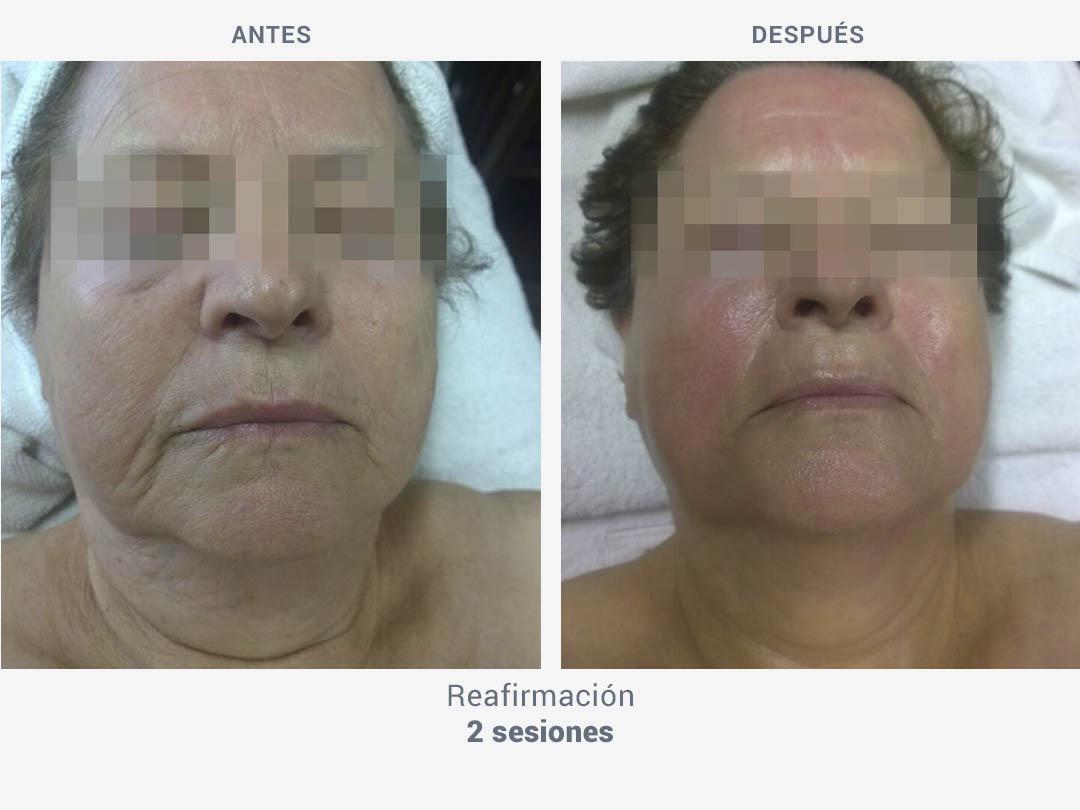 Imágenes del antes y después tras 2 sesiones de tratamiento de reafirmación con Mesobiolift de ROSS