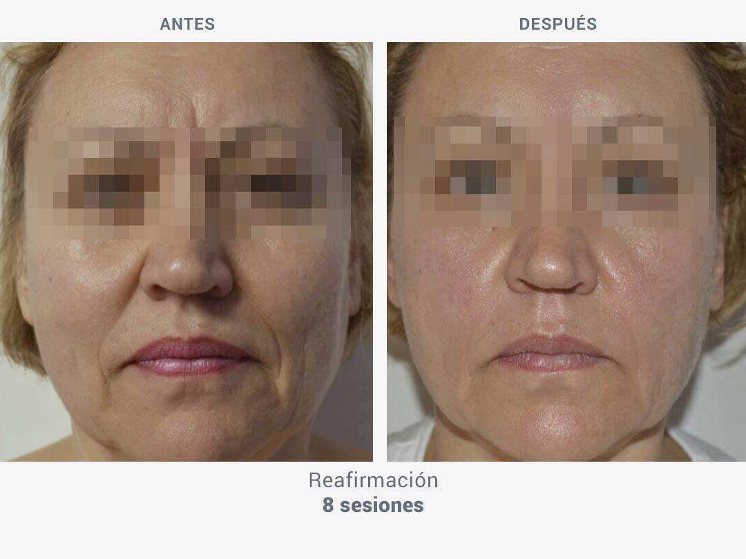 Imágenes del antes y después tras 8 sesiones de tratamiento reafirmante con Mesobiolift de ROSS
