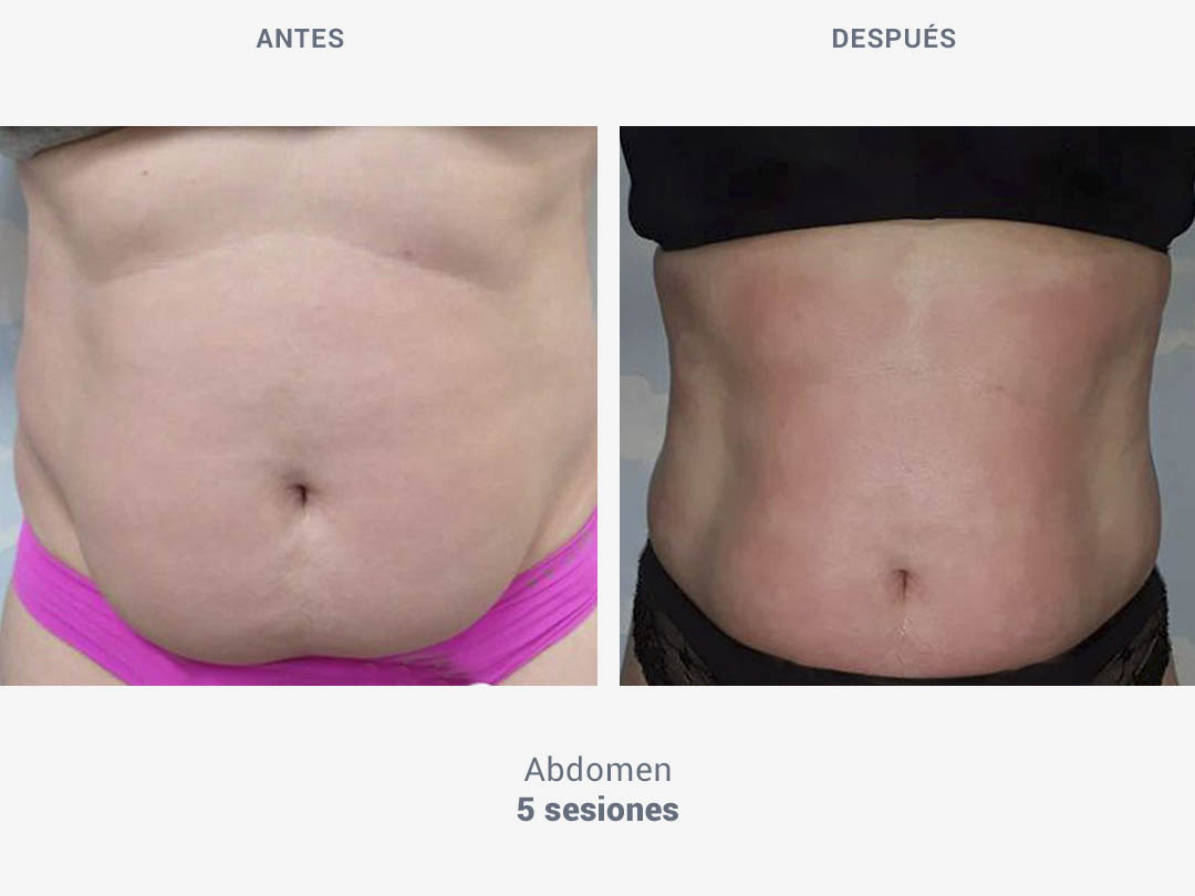 Imágenes del antes y después tras 5 sesiones de tratamiento en abdomen con Tei System de ROSS