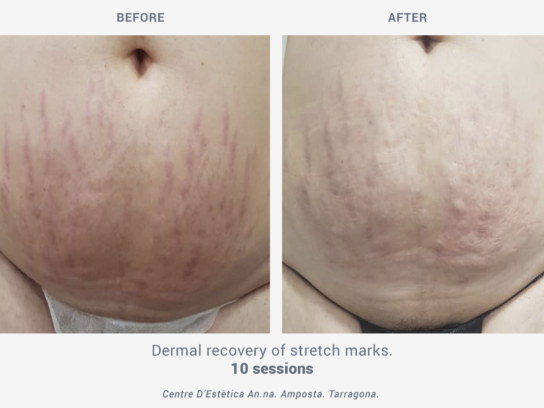 Before and after images of a dermal recovery of stretch marks after 10 sessions of treatment with Binary by ROSS