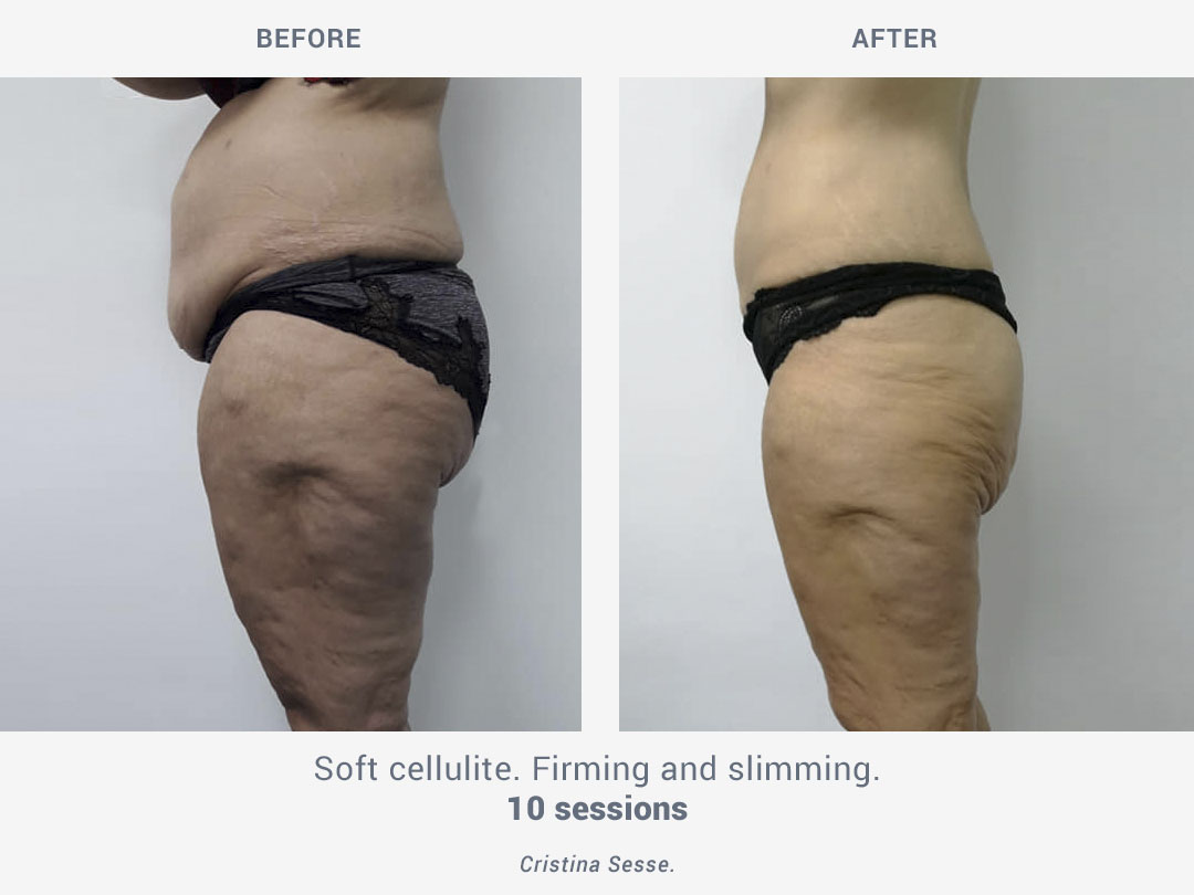 Before and after images of soft cellulite after 10 sessions of firming and slimming treatment with Binary by ROSS