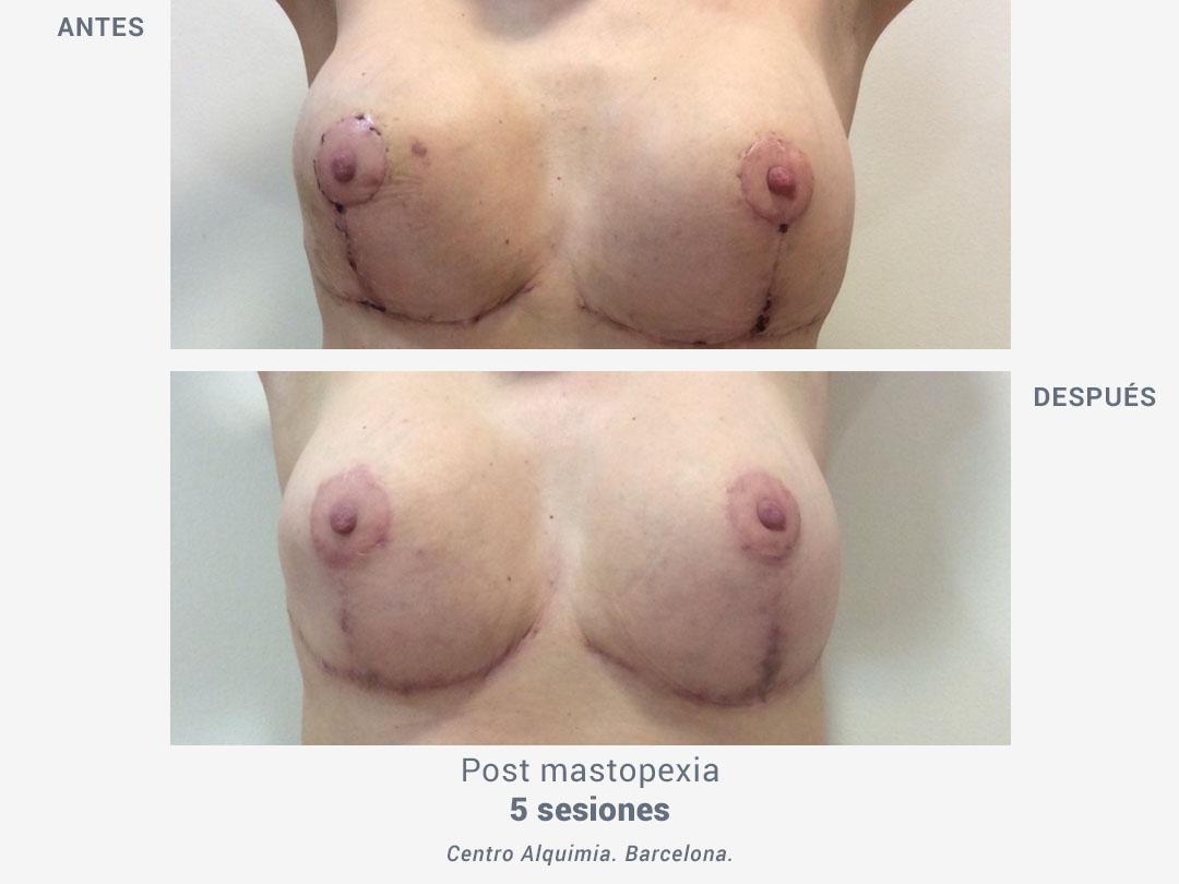 Imágenes del antes y después de una mastopexia tras 5 sesiones con tratamiento Binary de ROSS