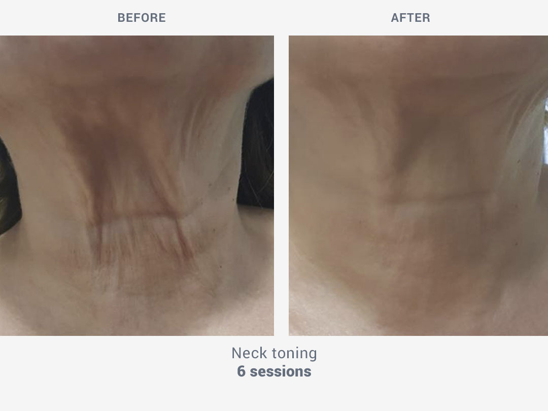 Before and after images of neck toning treatment after 6 sessions with Mesobiolift by ROSS