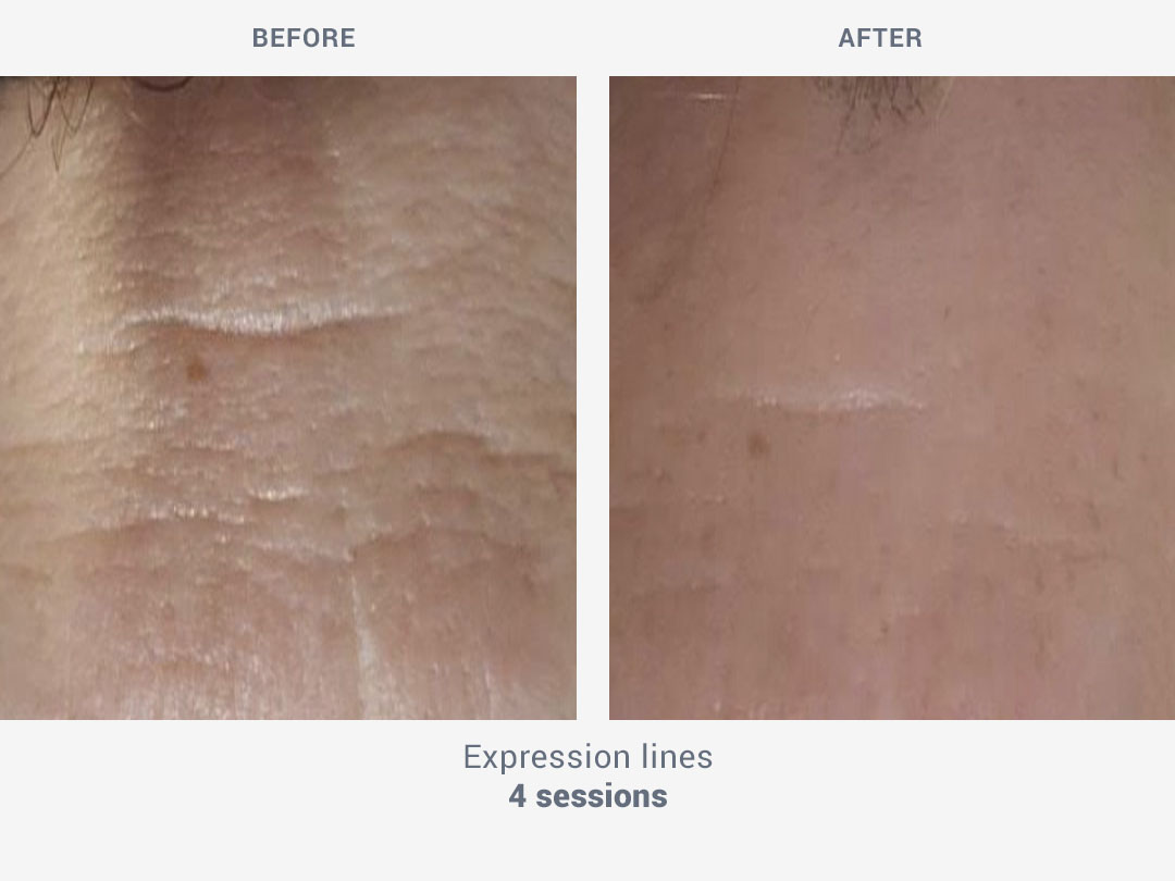 Before and after images of expression lines with 4 sessions with Mesobiolift by ROSS
