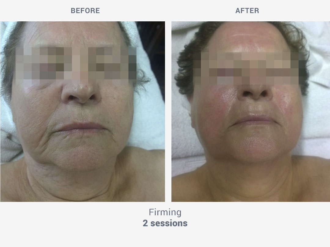 Before and after images of firming facial treatment with 2 sessions with Mesobiolift by ROSS