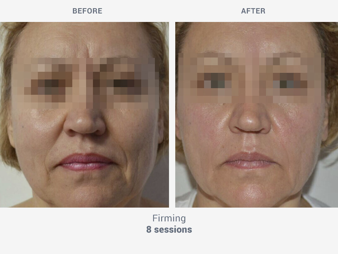 Before and after images of firming facial treatment with 8 sessions with Mesobiolift by ROSS