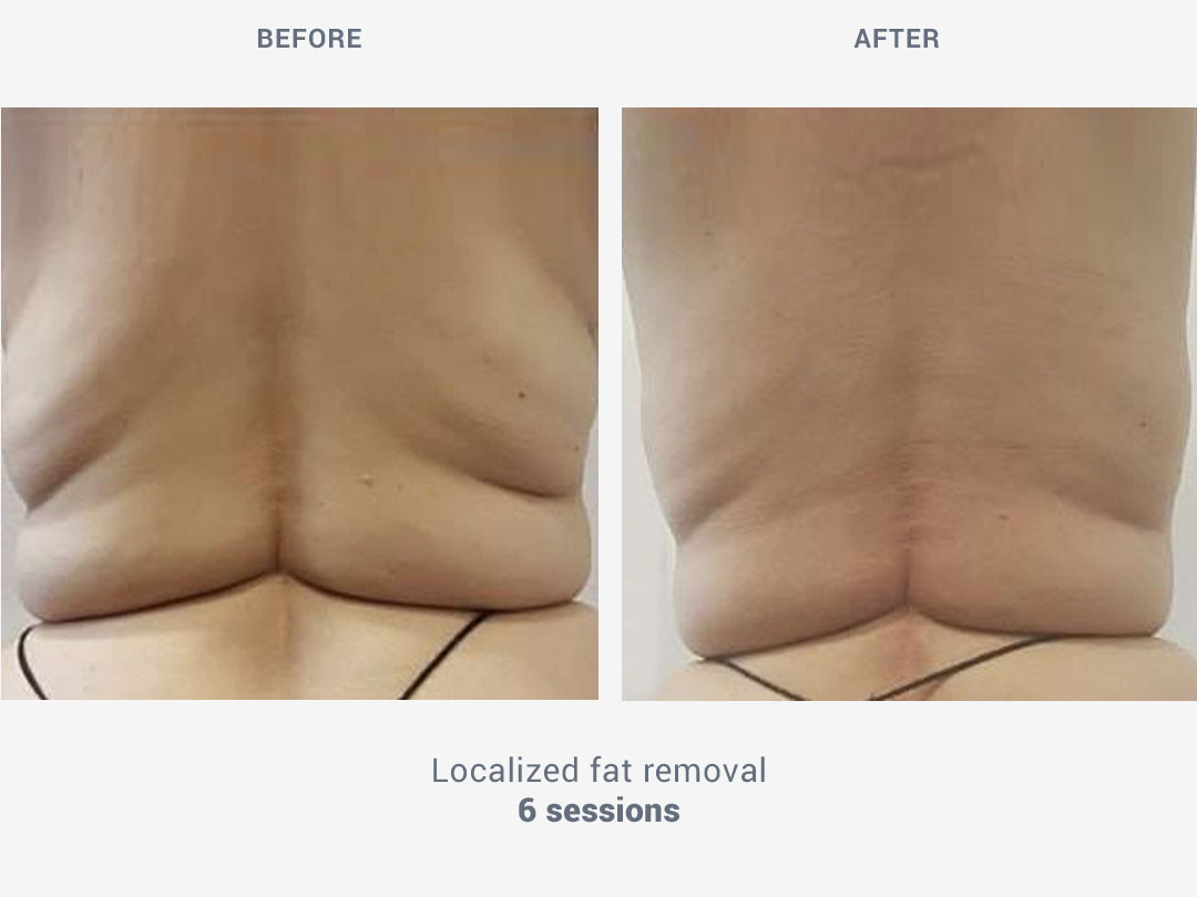 Before and after images of localized fat removal treatment after 6 sessions with Rollaction by ROSS