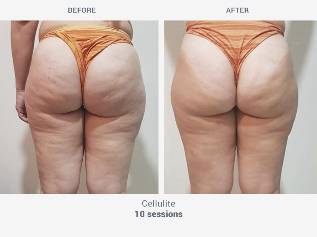 Before and after images of cellulite treatment after 10 sessions with Rollaction by ROSS