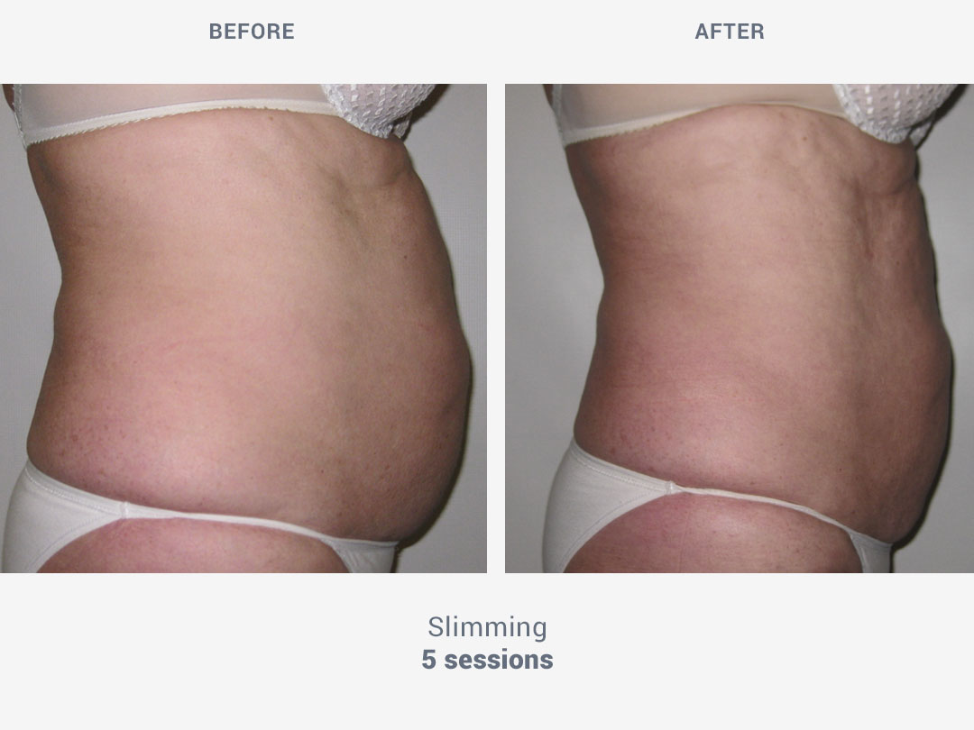 Before and after images of slimming treatment after 5 sessions with Rollaction by ROSS