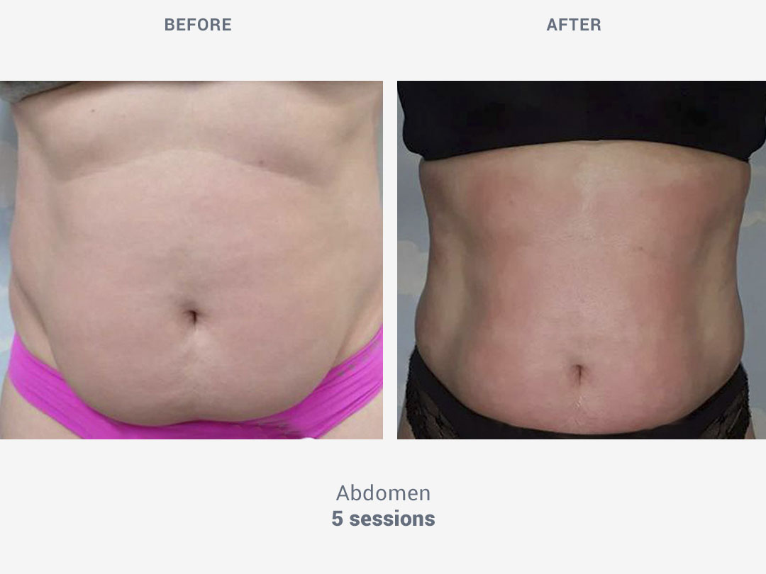 Before and after images of abdomen treatment after 5 sessions with Tei System by ROSS