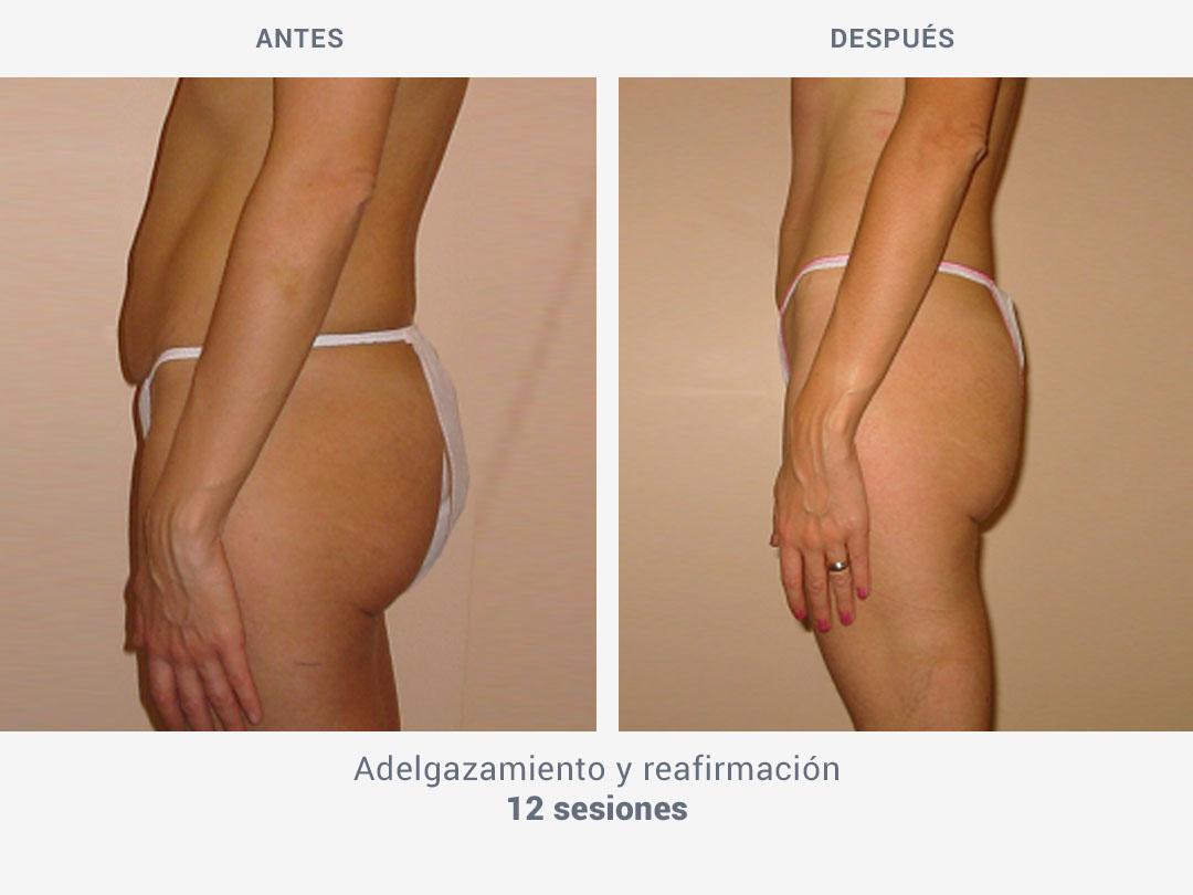 Imágenes del antes y después tras 12 sesiones de adelgazamiento y reafirmación con Kestos T2 de ROSS