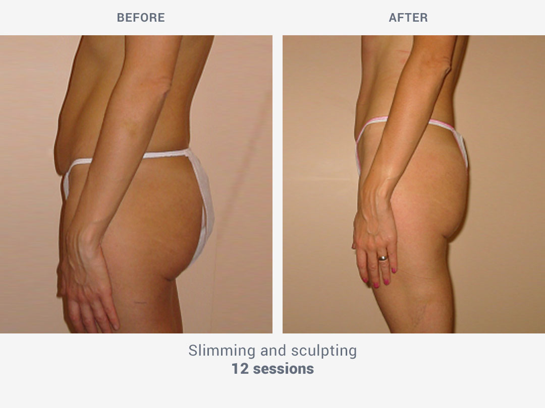 Before and after images of slimming and sculpting treatment after 12 sessions with Kestos T2 by ROSS