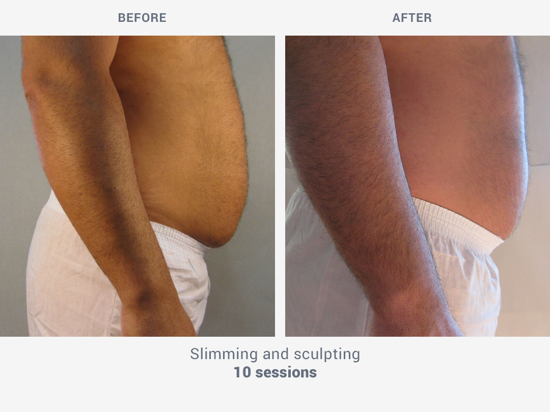 Before and after images of slimming and sculpting treatment after 10 sessions with Kestos T2 by ROSS