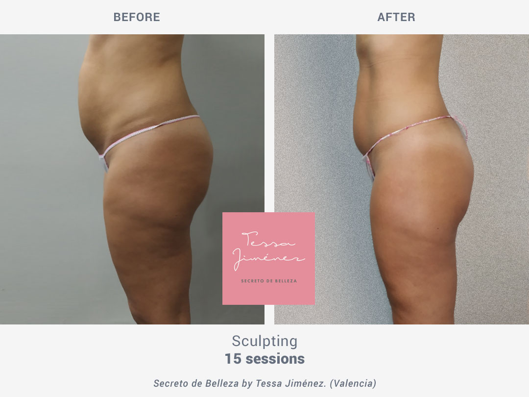 Before and after images of sculpting treatment after 15 sessions with Rollaction by ROSS