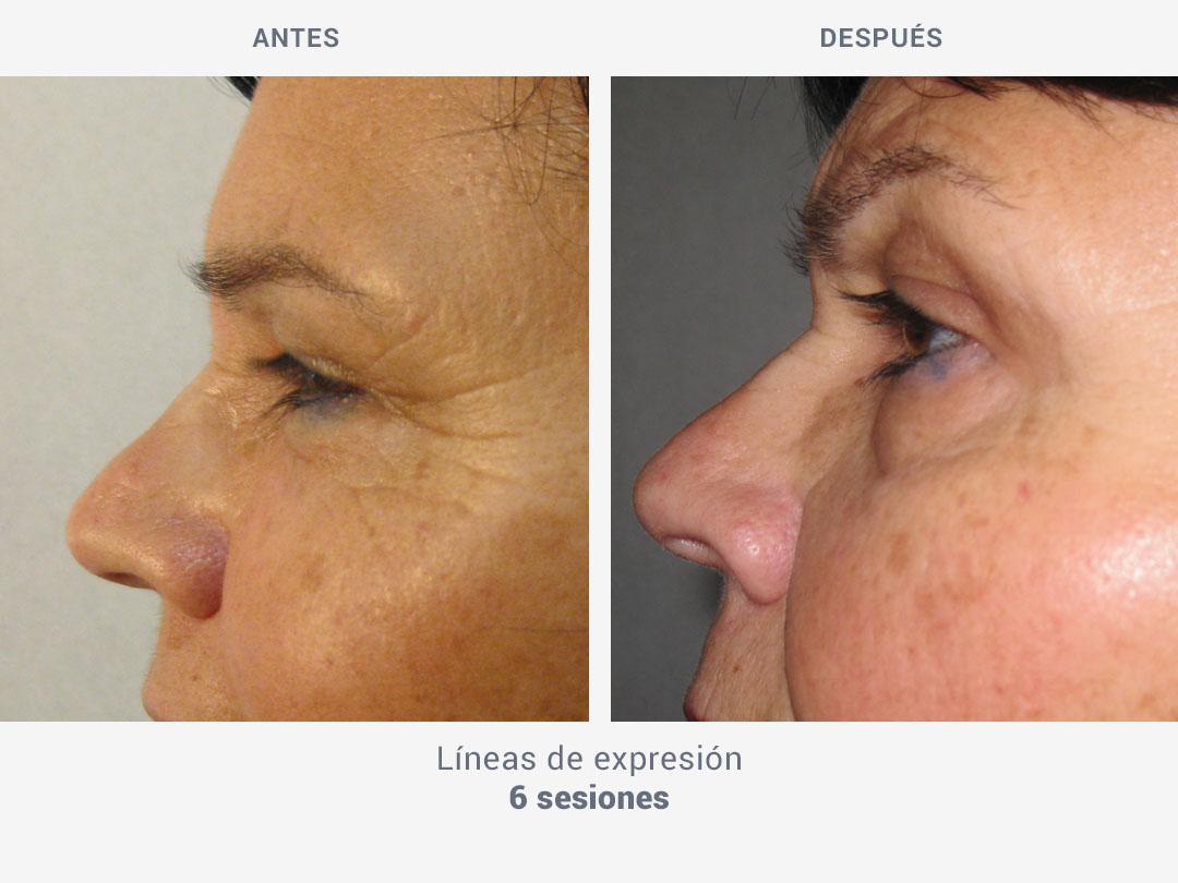 Imágenes del antes y después de las líneas de expresión tras 6 sesiones con tratamiento My Sekret de ROSS