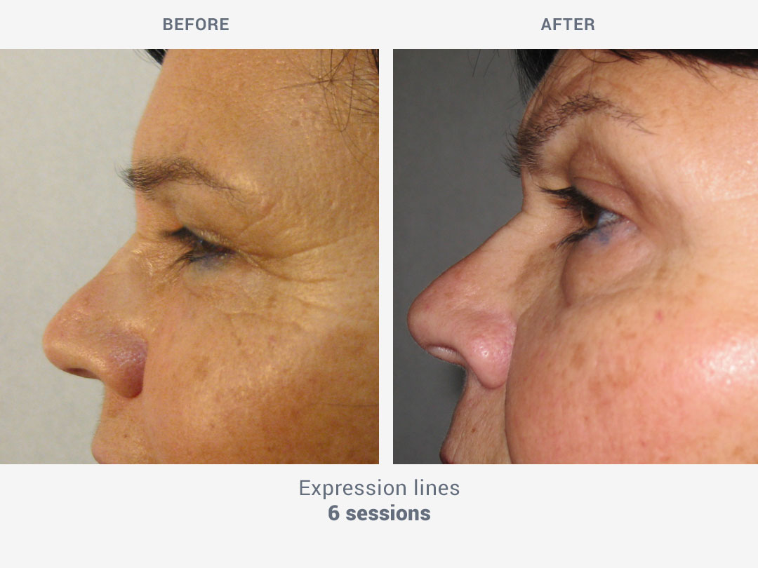 Before and after images of expression lines after 6 sessions with My Sekret treatment by ROSS