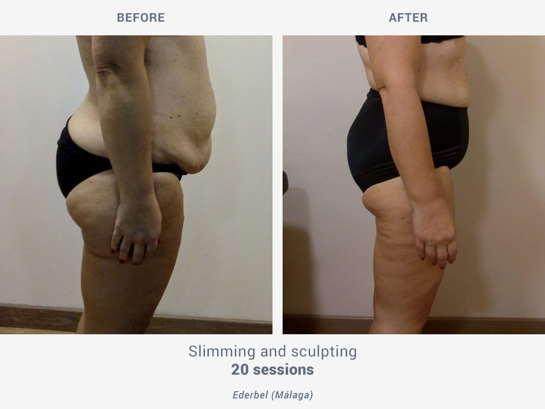 Before and after images of slimming and sculpting treatment after 20 sessions with Tei System by ROSS