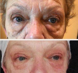 Imagen antes-después Resultados Tratamiento Binary System Párpados caídos