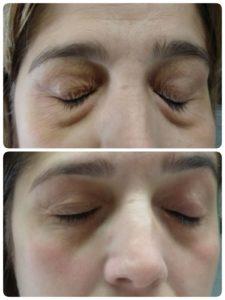 Imagen antes-después Resultados tratamiento Binary System en Bolsas Ojos