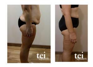 imagen ejemplo aplicación Tei System en reducción volumen corporal