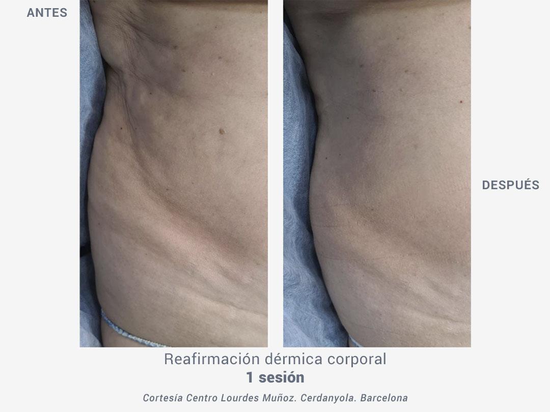 tratamiento reafirmación flacidez dérmica corporal termobeauty_ross estética