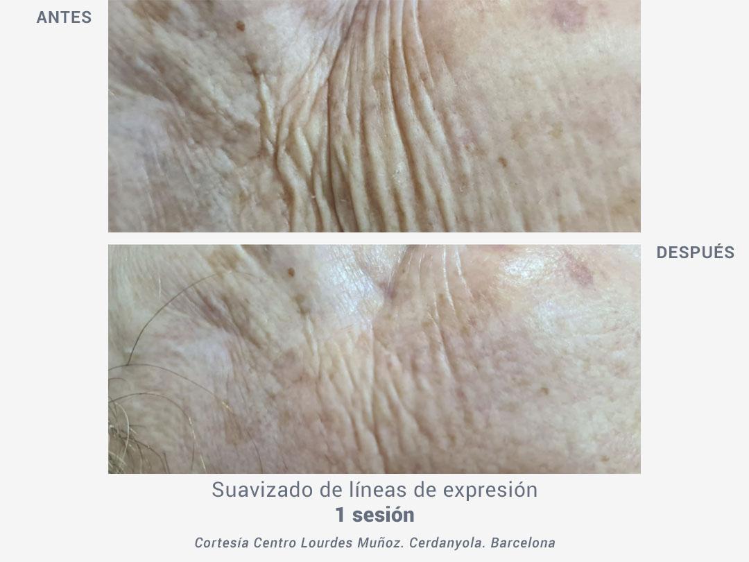 tratamiento líneas expresion lifting facial termobeauty_ross estetica