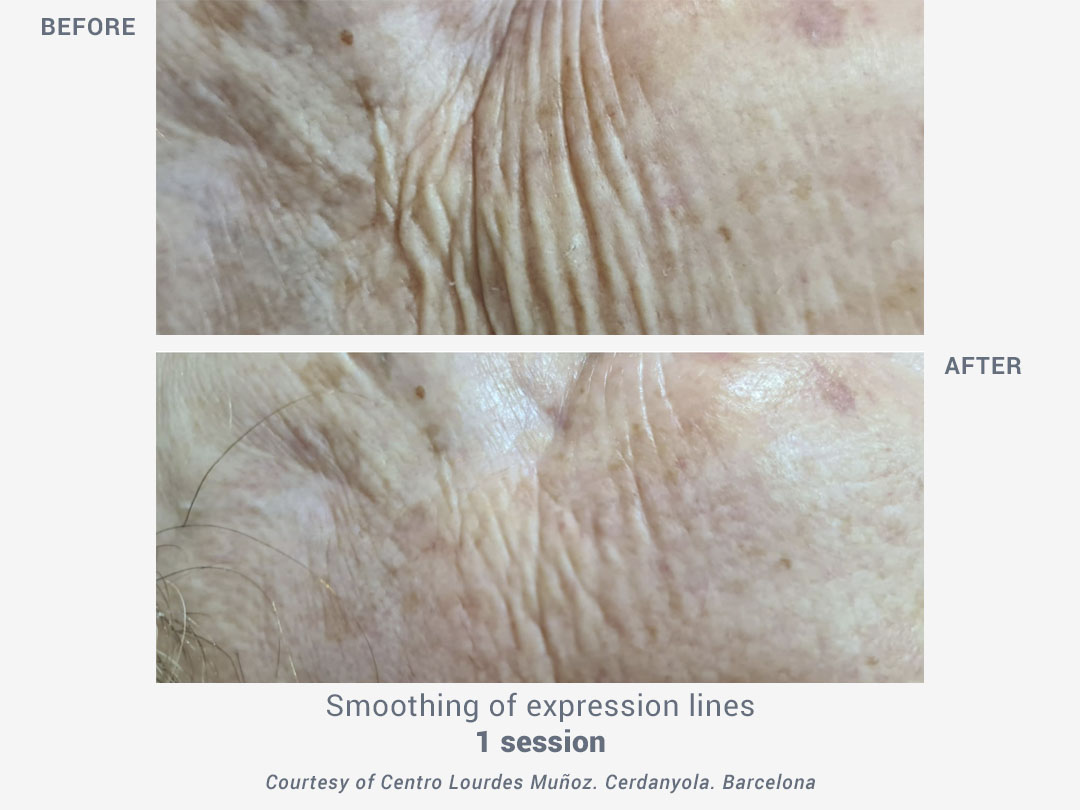 treatment expression lines_facial lifting termobeauty_ross estetica