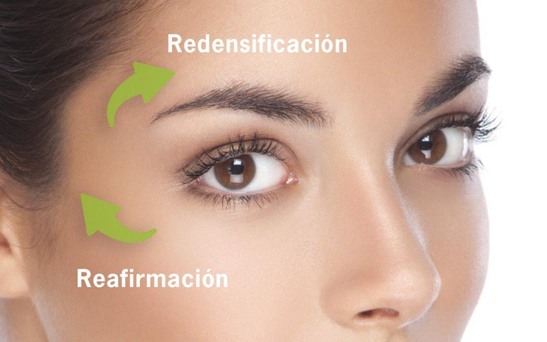 ¿Se pueden eliminar las bolsas de ojos? ¿Existe alternativa a la cirugía de párpados para abrir la mirada?